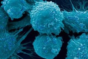 Tỷ lệ ung thư ở nữ tăng nhanh gấp 3 lần nam giới