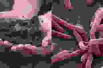 """24 người mắc bệnh """"vi khuẩn ăn thịt người"""" sau đợt mưa lũ, 4 người tử vong"""