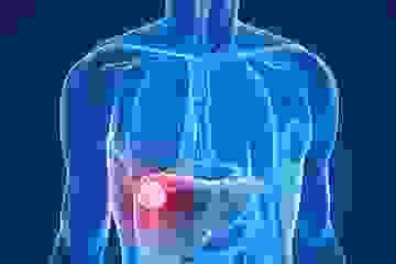 Dấu hiệu thầm lặng của bệnh ung thư gan