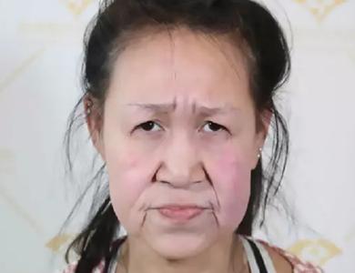 Cô bé 15 tuổi có khuôn mặt bà già lột xác sau phẫu thuật