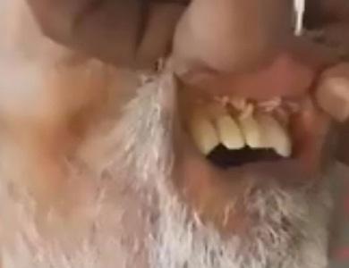 Giòi nhung nhúc trong miệng bệnh nhân đột quỵ