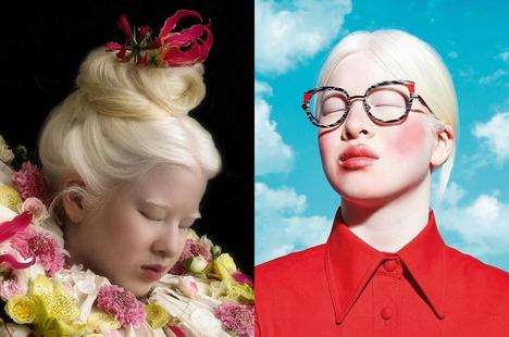 Cô gái bạch tạng từng bị cha mẹ bỏ rơi, trở thành người mẫu tạp chí Vogue