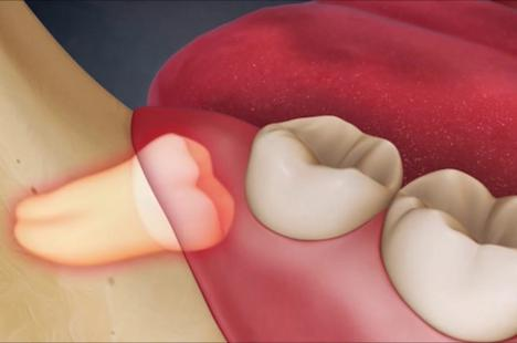 Răng số 8 biến chứng có thể là vấn đề của … ung thư