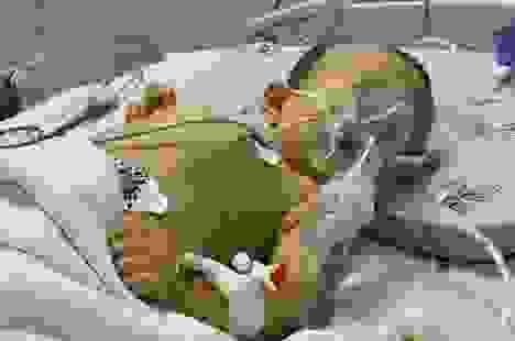 Quặn lòng cảnh bé hơn 1 tuổi co giật từng cơn trong đau đớn