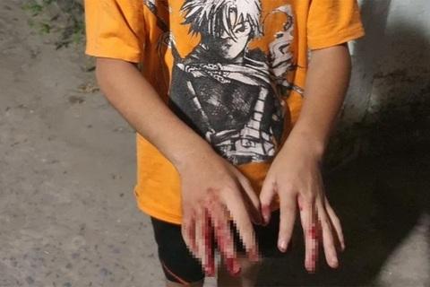 Cha đánh con chảy máu tay vì chơi game: Phương pháp giáo dục này có đúng?