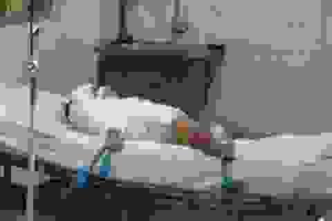 Đau lòng vụ bé gái 2 tuổi bị tạt hóa chất