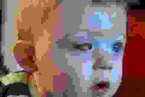 Nhói lòng bé trai bị mất một mắt do cánh quạt máy bay đồ chơi
