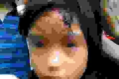 Giải cứu bé gái đầy thương tích từ căn nhà khóa 2 lớp trong chùa
