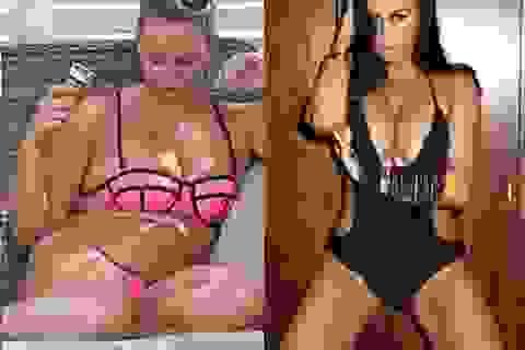 Người mẫu Anh tăng cân mất kiểm soát
