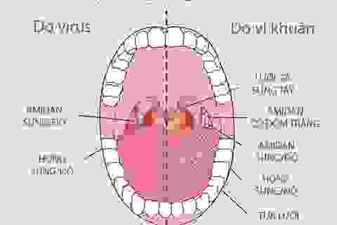 Viêm họng vào mùa, kháng sinh không phải phao cứu sinh!