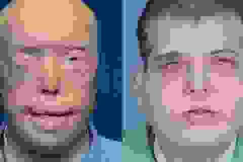 Ca ghép mặt và da đầu toàn diện trị giá triệu đô