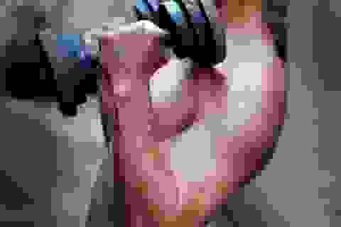 Thuốc làm tăng cơ bắp: Lợi ít, hại nhiều