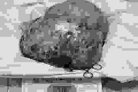 Lấy thành công khối u khủng trong bụng cụ bà 80 tuổi