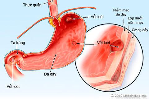 Viêm loét dạ dày: Không thể xem thường