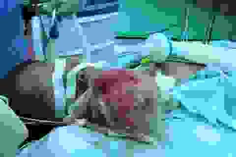 Bác sĩ ớn lạnh với khối u 1 kg bên má nữ bệnh nhân