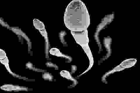 Đánh giá chất lượng tinh dịch nhờ đo tốc độ di chuyển xoay tròn của tinh trùng