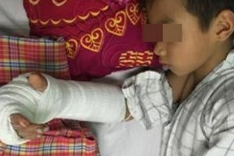 Đùa nghịch, bé 8 tuổi bị anh họ chém gần đứt lìa tay