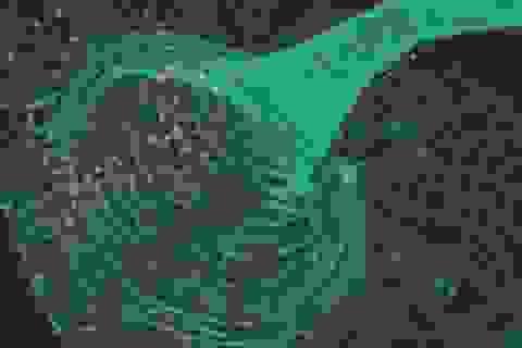 Phát hiện nhiễm virus dựa vào protein huỳnh quang