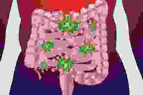 Vi khuẩn đường ruột khác biệt ở trẻ em béo phì
