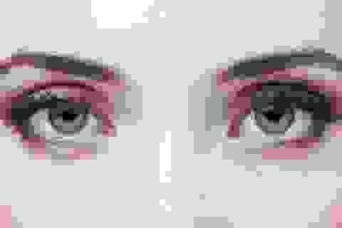 Phương pháp kiểm tra mắt mới ngăn ngừa suy giảm thị lực