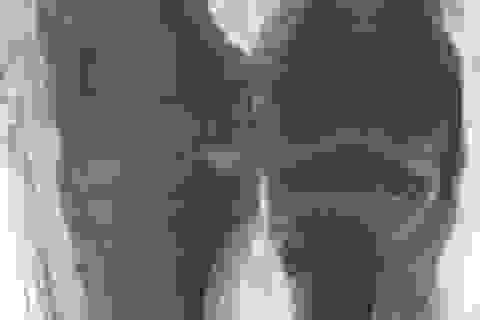 Công nghệ chụp CT lộ ra các chi tiết mới từ các bản chụp X quang xác ướp đầu tiên