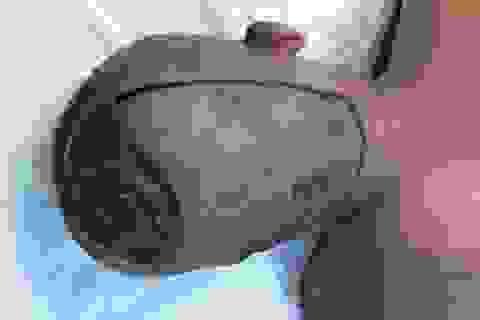 Cấy tóc cho bệnh nhân bị… lộ xương sọ