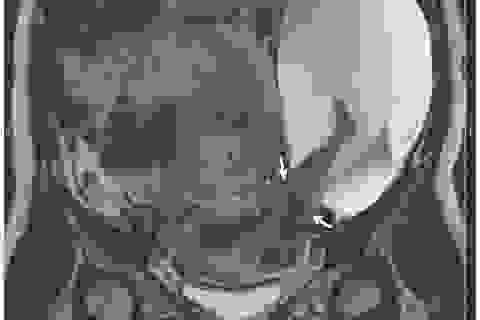 Hy hữu hình ảnh em bé thò chân ra khỏi tử cung của mẹ
