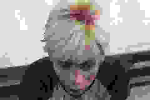 Chuyện đằng sau clip thanh niên đầu chảy máu đòi gặp CSGT!