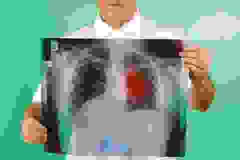 Những loại ung thư dễ phòng ngừa nhất