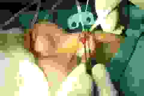 Sau 2 năm thiếu nữ nâng mũi, BS kinh ngạc gắp ra cục gạc