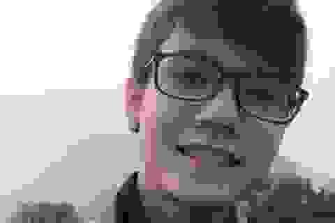 Chàng trai 22 tuổi khổ sở vì gương mặt... xinh gái
