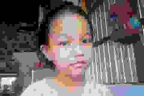 Ánh mắt đáng thương của bé gái 10 tuổi bị câm điếc kèm tim bẩm sinh
