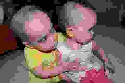 Thương 2 chị em mắc đa dị tật, suy giảm miễn dịch bẩm sinh
