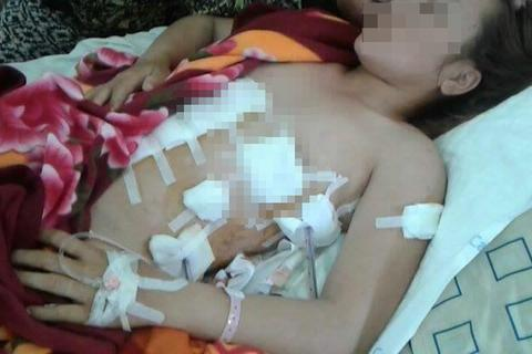 Xét xử vụ người phụ nữ bị tình nhân của chồng đâm thương tích 75%