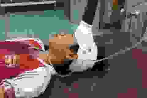 Cứu sống bé trai 12 tuổi bị dao đâm giữa trán