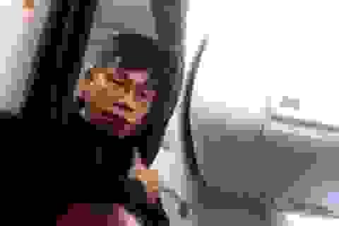 Sếp United Airlines bị chất vấn trước Quốc hội Mỹ vì vụ bác sĩ gốc Việt