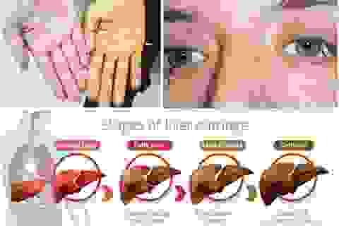 Bạn đang gặp vấn đề ở gan?