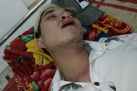 Công an lên tiếng việc CGST bị tố đánh người nhập viện