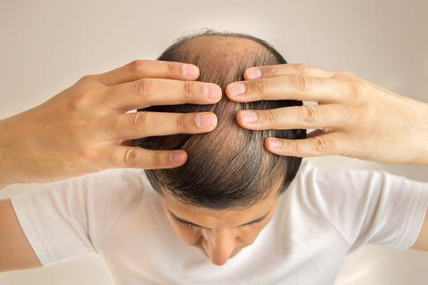 Phát hiện 200 chỉ dấu di truyền liên quan với hói đầu