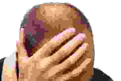 Cảnh báo: Thuốc chữa hói đầu gây rối loạn cương dương kéo dài