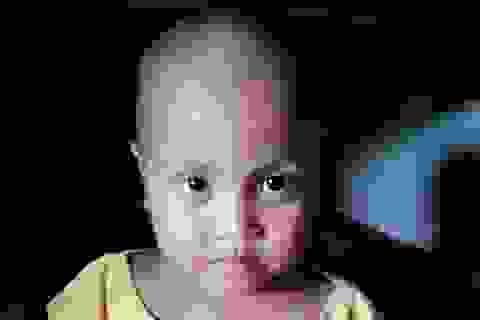 Ám ảnh ánh mắt của bé 5 tuổi người dân tộc Khmer bị ung thư máu