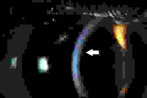 Suýt mù do bị lông sâu róm bắn vào mắt