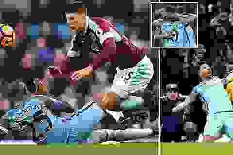 10 người Man City giành chiến thắng trước Burnley