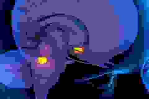 Trạng thái căng thẳng đầu óc sẽ có ảnh hưởng gì đến tim?