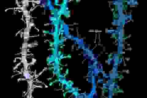 Hình ảnh  phân giải cao cho thấy cách não phục hồi trong lúc ngủ