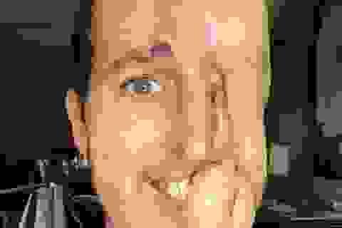 """Nghị lực phi thường của chàng trai bị khối u ác """"ăn"""" mất nửa khuôn mặt"""