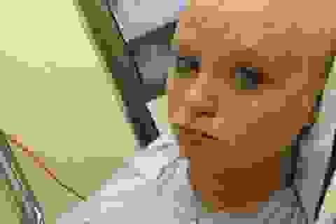 Tưởng mang thai, bà mẹ sinh ra khối u khổng lồ