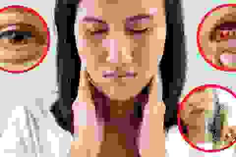 5 triệu chứng thiếu vitamin biểu hiện rõ trên khuôn mặt