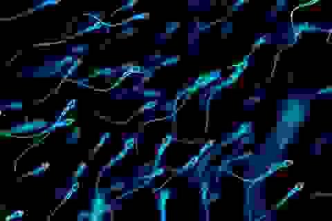 Số lượng tinh trùng của đàn ông phương Tây đang ở mức thấp kỷ lục