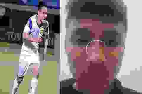 Cầu thủ SL Nghệ An đấm gãy mũi đối thủ nhận án phạt nặng
